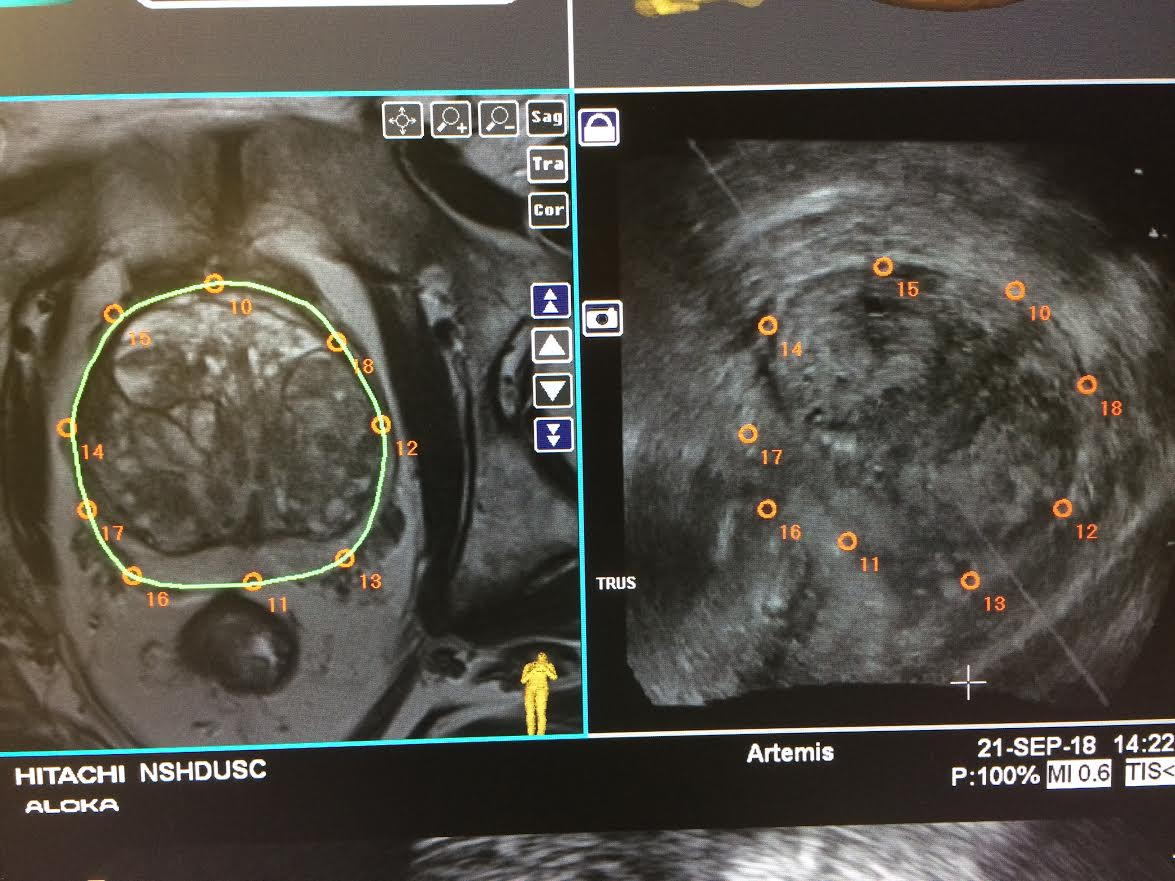 Two MRI Guided Fusion Prostate Biopsy images