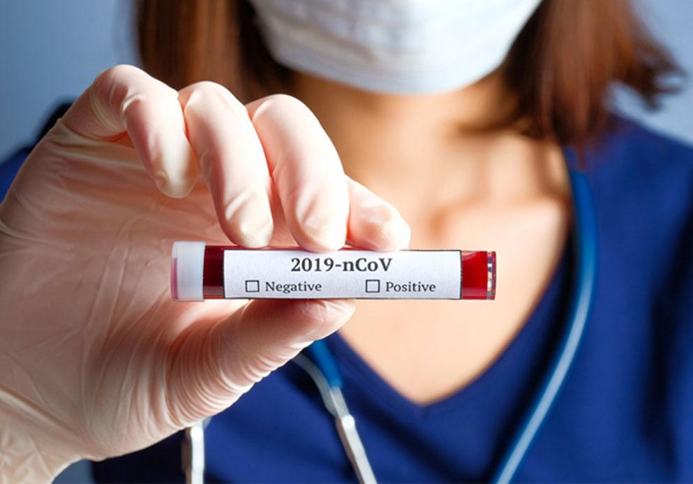 Female nurse holding covid-19 blood test.