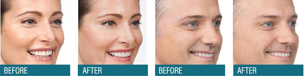 Aesthetic Center Botox – Wrinkle Reduction