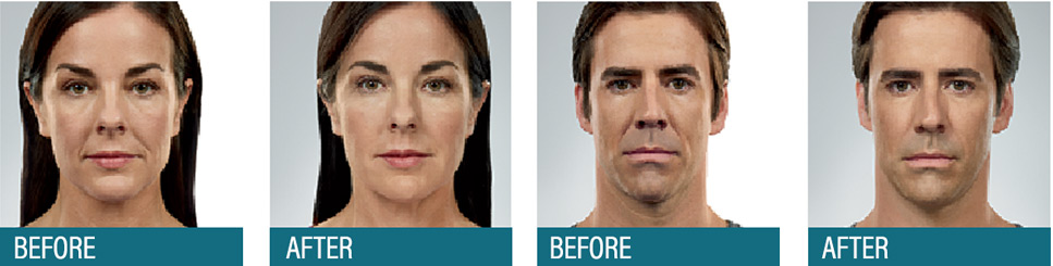 Aesthetic Center Facial Fillers – Wrinkle Reduction