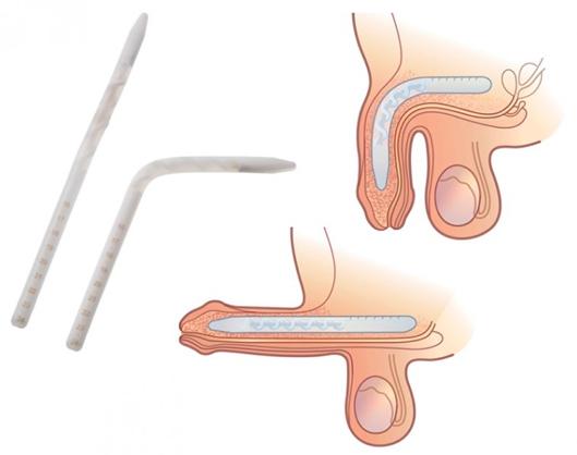 Genesis Flexible Rod Penile Implant